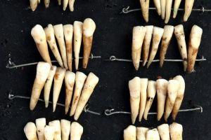 Proteza dentară, populară mulţumită soldaţilor morţi