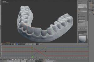 Acest tip şi-a reparat dinţii prin imprimarea 3D a propriului aparat ortodontic